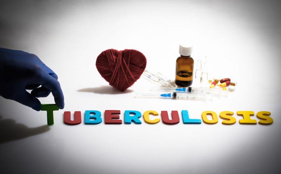 Diagnose tuberculosis early